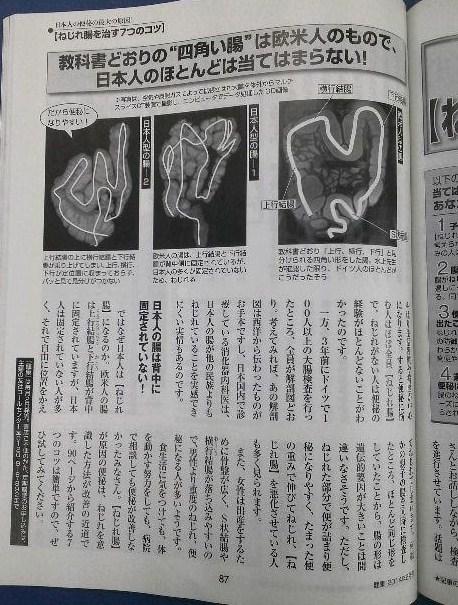 2ねじれ腸.jpg